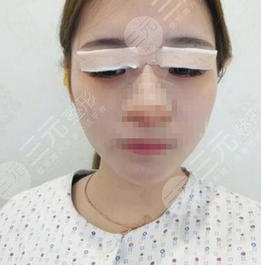 北海人民医院整形科双眼皮案例