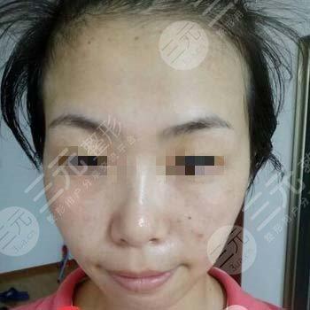上海九院激光美容科祛斑案例