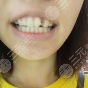 江门口腔医院种牙案例