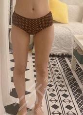 天津公安医院整形科大腿吸脂案例