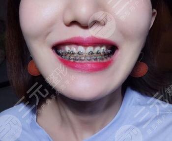 贵州医科大学第二附属医院牙齿矫正案例
