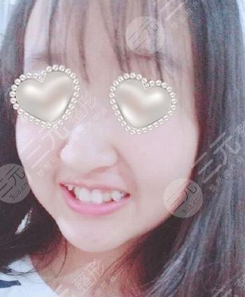 上海牙防所种植牙过程