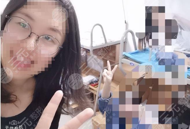 西京医院整形外科孙峰双眼皮案例
