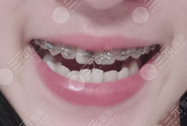 北京八大处整形医院牙齿矫正治疗分享