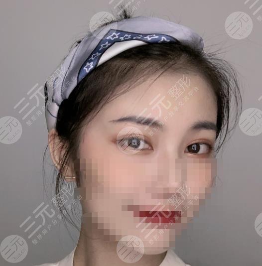 江苏省中医院双眼皮价格