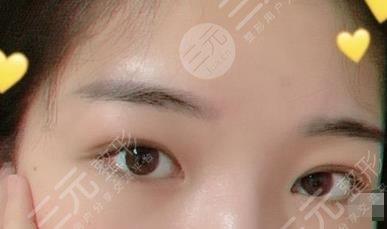 厦门第一医院整形科双眼皮修复手术经历分享