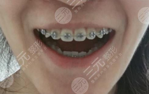 韶关口腔医院牙齿矫正经历分享
