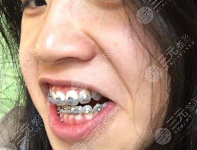 重庆八益牙科医院牙齿矫正经历分享