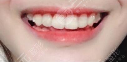 锦州附属二院牙齿矫正经历分享