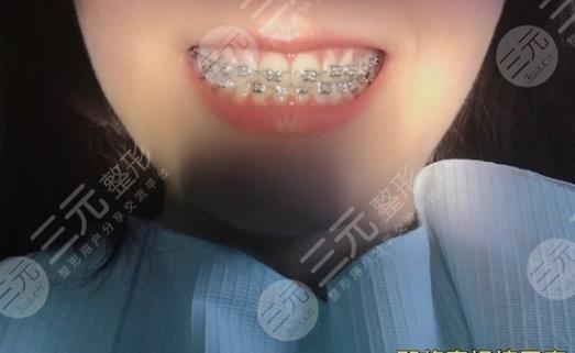 沈阳盛大口腔医院牙齿矫正经历分享