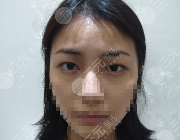 西京医院整形项目介绍及双眼皮手术经历分享