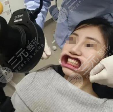 常德口腔医院牙齿美白经历分享