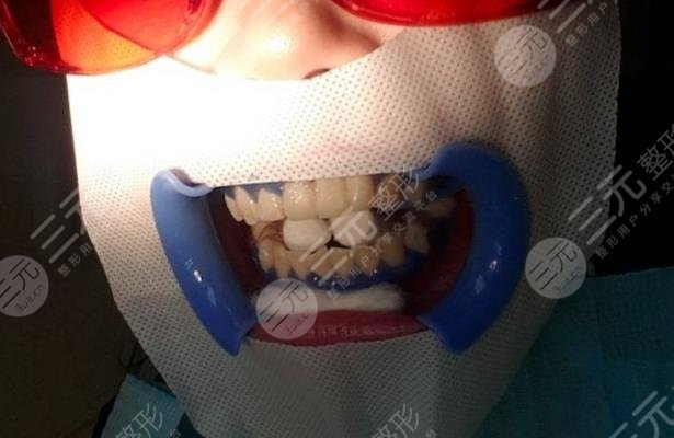 南充口腔医院牙齿美白经历分享