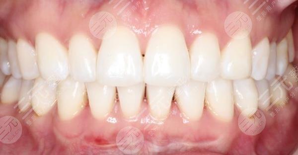 中山市小榄升艺牙科医院牙齿种植经历分享