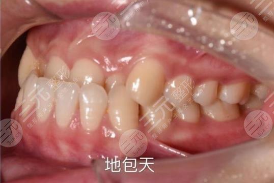 佛山市第一人民医院口腔科牙齿矫正分享