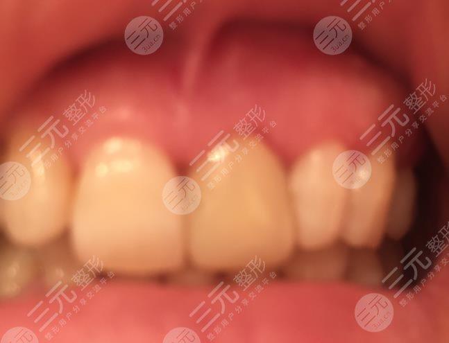 武汉咿呀口腔医院种植牙经历分享