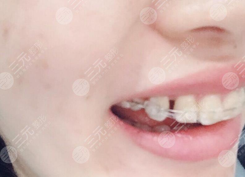 鞍山口腔医院牙齿矫正经历分享