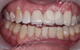 上海维乐口腔医院牙齿种植分享
