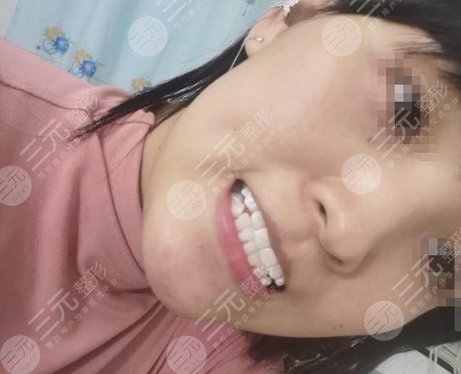 昆明医科大学附属口腔医院洗牙分享