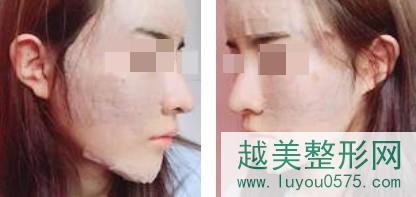 脂肪面部填充后皮肤饱满紧致更透亮白嫩了