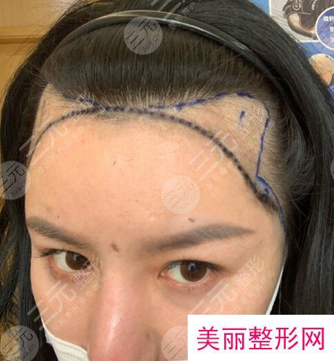 北京联合丽格植发