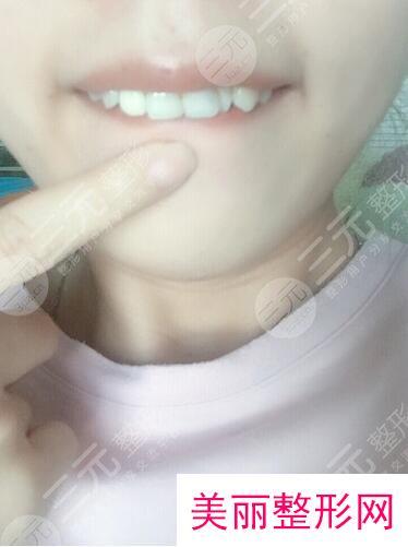 北京金圣口腔补牙案例分享