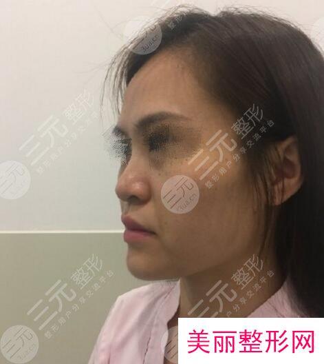 北京金燕子整形美容隆鼻案例
