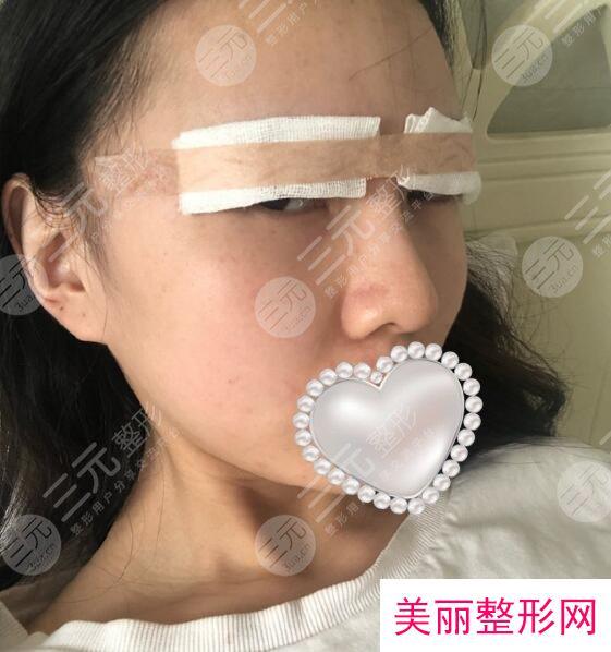 西京整形医院双眼皮案例分享