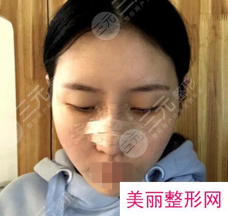 上海星和医疗美容医院鼻部整形后4天