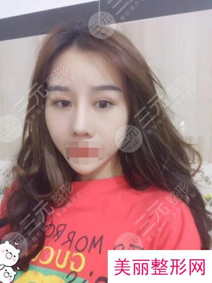 上海星和医疗美容医院鼻部整形后34天