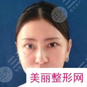 上海九院植发科医生简介
