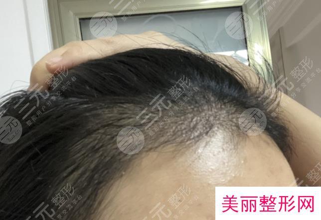 广州华美医院植发手术分享
