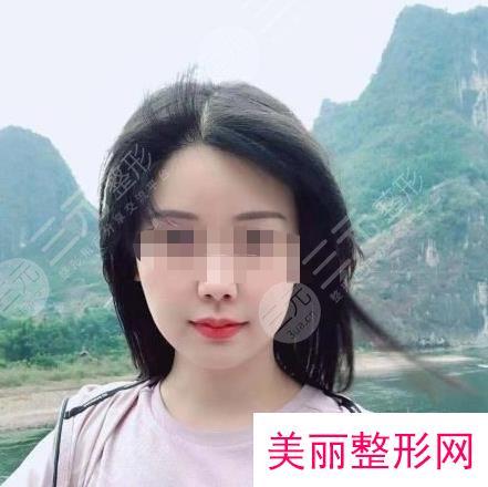 北京中日友好医院无痕植发手术经历分享