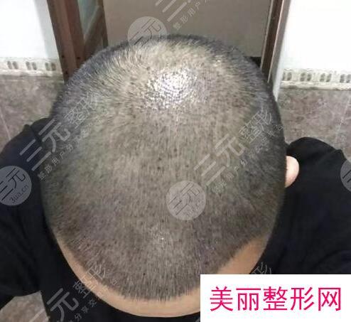 上海雍禾植发医院发际线种植经历分享