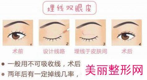 埋线法做双眼皮价格是多少?影响因素