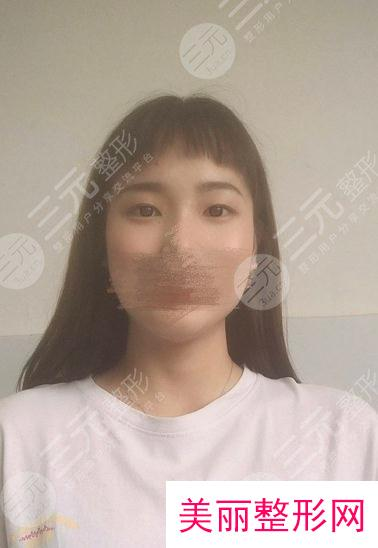 2021新版西京整形医院价位表,双眼皮案例
