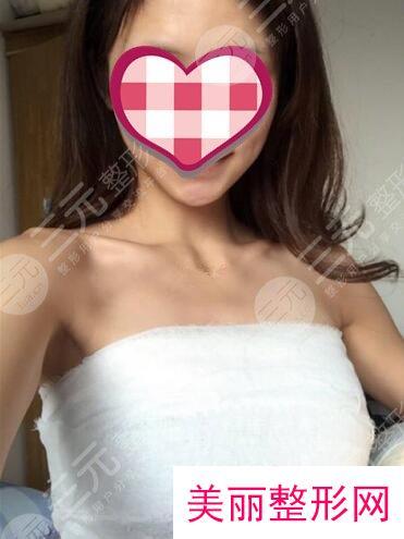 哈尔滨医大一院丰胸多少钱?丰胸案例