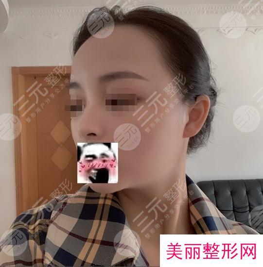 北京八大处整形玻尿酸隆鼻案例