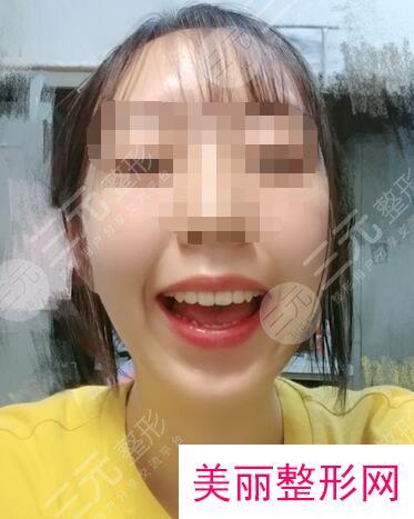 江津中心医院牙科牙齿矫正案例