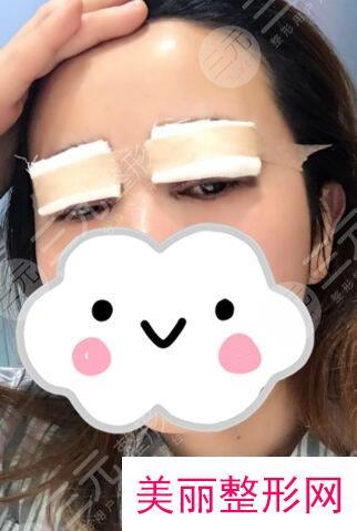 天津眼科医院做双眼皮多少钱?双眼皮术后效果