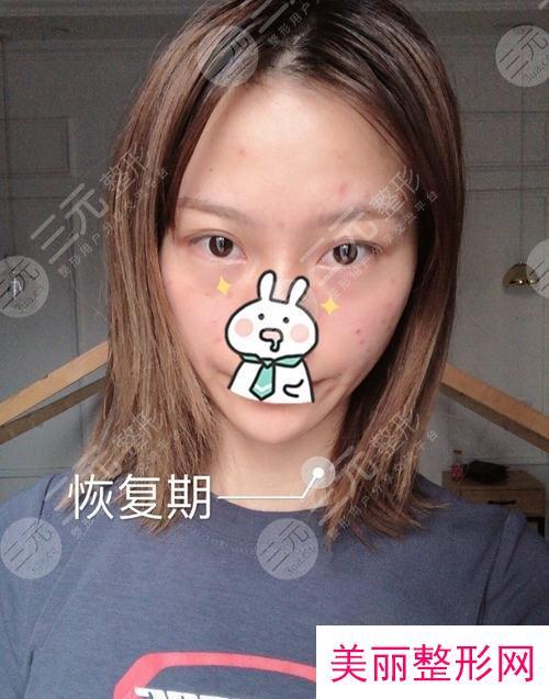 上海九院激光美容新版价目表出炉,激光祛斑效果反馈